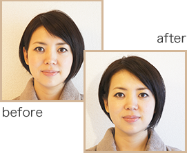 before−after